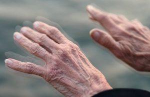 La extirpación del apéndice podría proteger contra el Parkinson